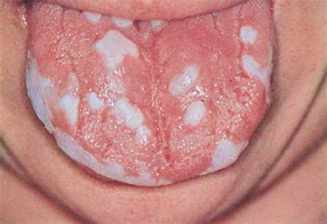 get rid of persistent yeast infection picture 2