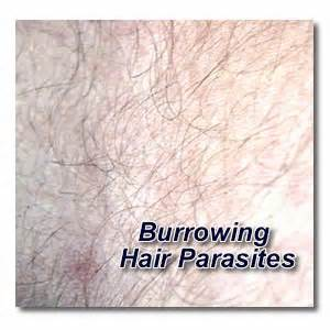 parasites burrowed in skin picture 6