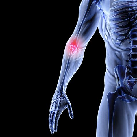 armor and joint pain picture 15