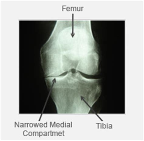 medial knee pain + joint space picture 3