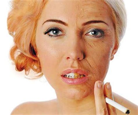 cigarette smoking affect on skin picture 1