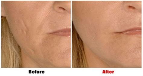 acne dermafillers picture 5
