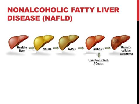 alcoholic fatty liver disease symptoms picture 1