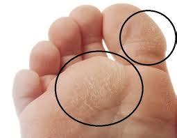 aging foot problems picture 5