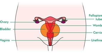 ovarian cancer and bladder pain when laying down picture 3