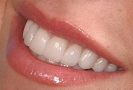 la jolla teeth bonding picture 10