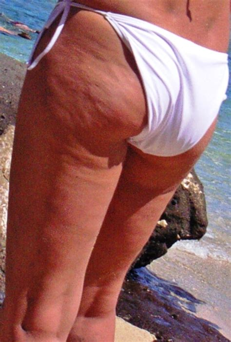 coffee and cellulite picture 17