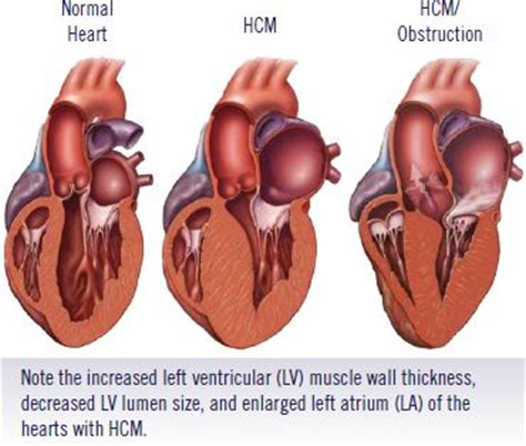 heart muscle about a centimeter thick picture 5