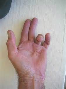 stigmata of chronic liver disease skin picture 1