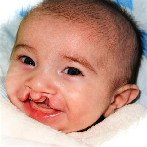 cleft lip cleft palate picture 6