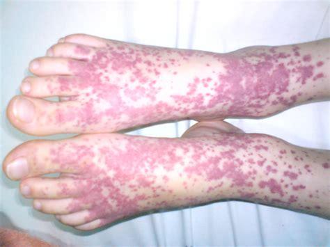 acne meds liver damage picture 17