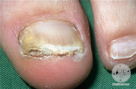 what is nail fungus picture 13