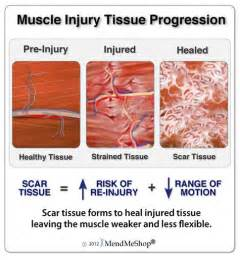 information on how to care for muscle pull picture 5