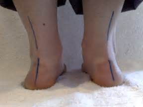 cortisone cause joint pain picture 10