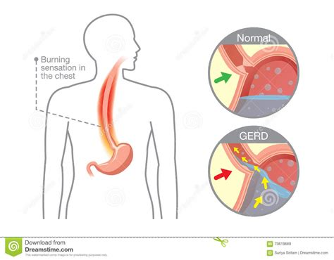acid reflux caused by full els picture 12