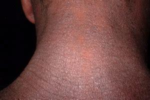 poison skin rashes picture 6