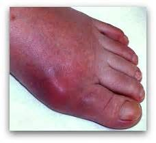 joint pain big toe picture 15