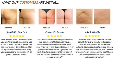 anyone use revitol for cellulite picture 1