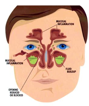 herbs that reduce nasal mucos picture 2