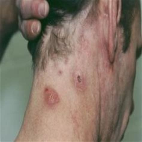 staph infection on stretch mark picture 1