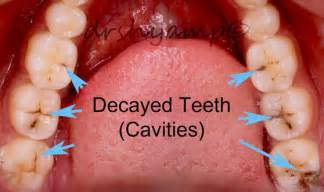 decayed and sensitive teeth picture 6