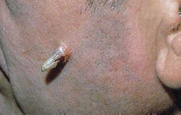 feline chin acne picture 18
