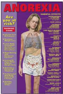 anorexic weight loss picture 1