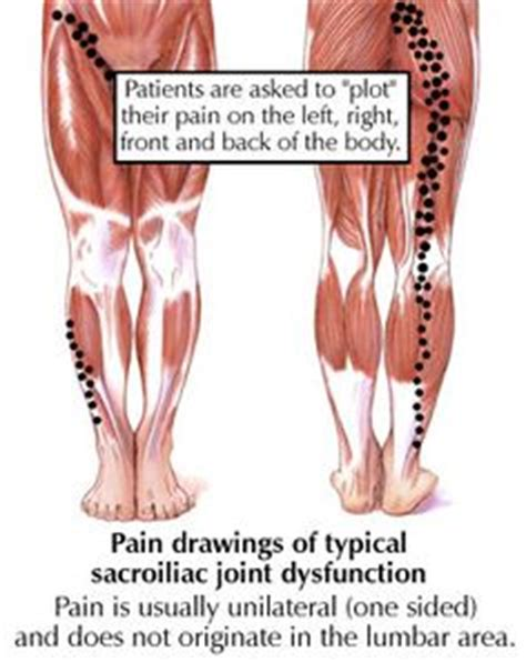 asvocare cause joint pain picture 10