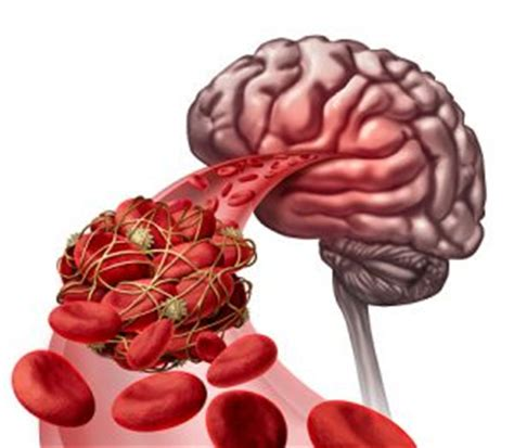 causes of blood clot in brain picture 8