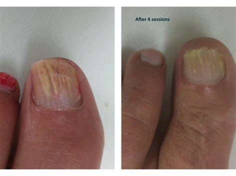 laser treatment for fungi nails in nc picture 12