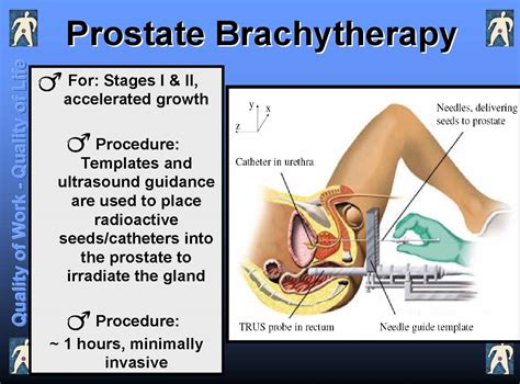 Medical information on prostate cancer picture 1