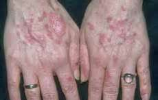 skin problems due to pregnancy picture 15