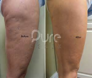cellulite clinic picture 1