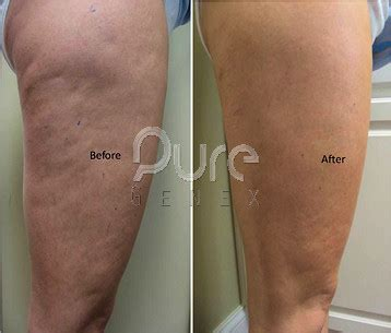 cellulite and laser picture 13