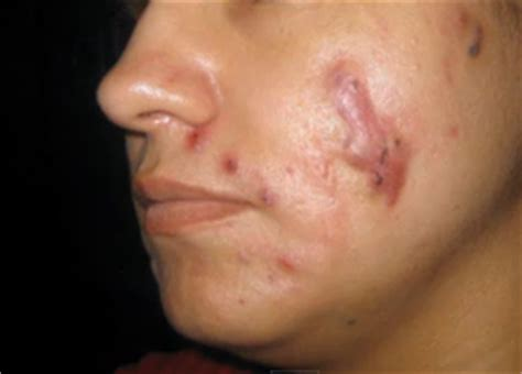 what is cystic acne picture 6