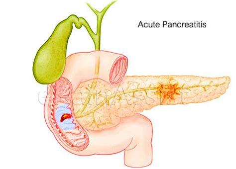 do probiotics aggravate pancreais picture 9