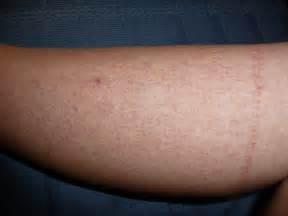 dengue skin marks picture 1