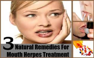 treatment for oral herpes picture 3