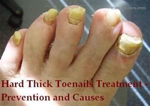 toenail fungus treatment vinegar picture 15