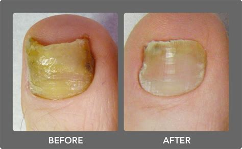 which podiatrist in florida uses patholase for nails picture 7
