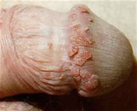 penis touched genital wart picture 2
