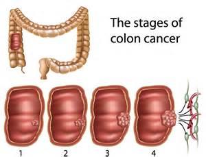 colon picture 15