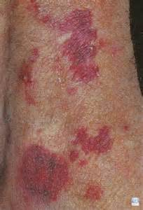 blood spots on skin picture 15