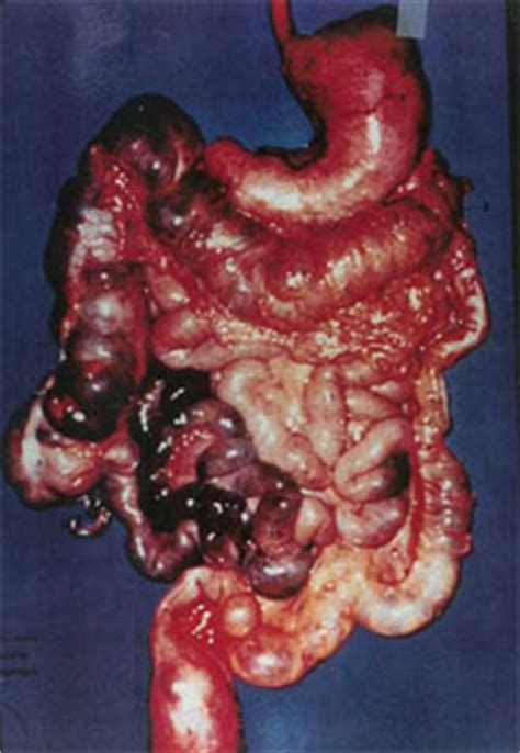 diseased colon picture 11