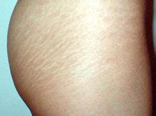 can white stretch marks appear without being another picture 9