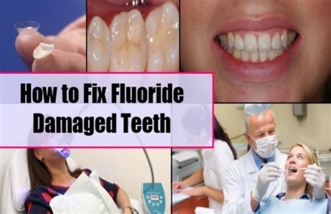 fluoride damaged childrens teeth picture 7