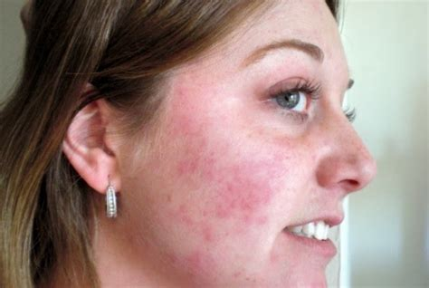does acne cause redness of the face picture 7