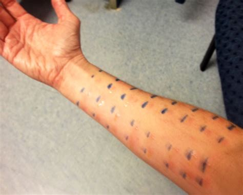 skin allergy testing picture 1