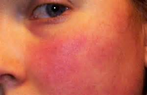 skin rash roseasha picture 10