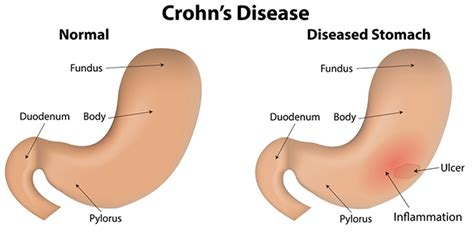 chron's disease joint pain picture 4
